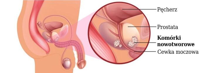 Rak prostaty z anatomicznego punktu widzenia