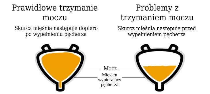 Leczenie częstego oddawania moczu - wizualizacja przed i po