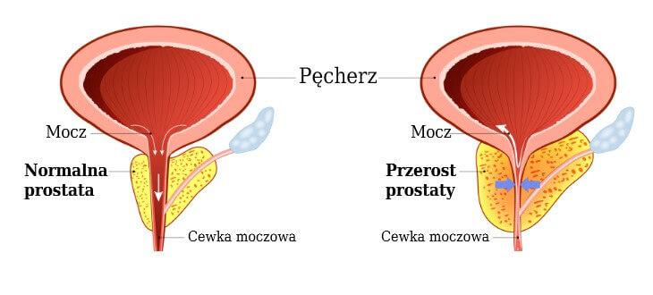 Normalny rozmiar i przerost prostaty