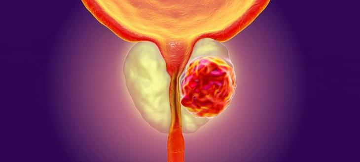 Rak prostaty - wszystko o nowotworze gruczołu krokowego